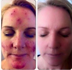 The amazing Marine Mud Mask that visibly draws out dirt, impurities and excess oils from your skin! Leaving you with blemish free, clear and soft complexion like this before and after! Email jesshatcher@hotmail.com to order ! #skin #skincare #acne #healthy