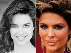 Celebrity With Plastic Surgery : The Berry
