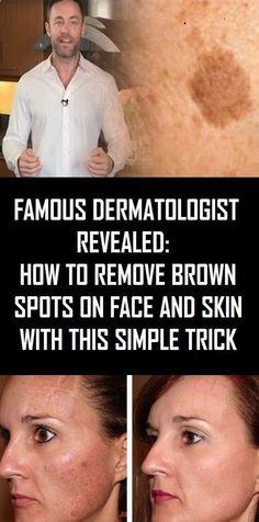 How to get Rid Of Brown Spots on Facial area de la piel hacks remedios caseros caras Brown Spots On Skin, Skin Spots, Dark Spots, Brown Skin, Dark Brown, Health Tips For Women, Health And Beauty, Health Advice, Healthy Tips