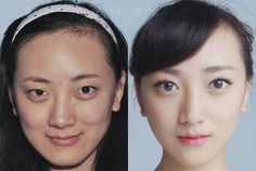 17 chinoises avant et après la chirurgie esthétique !