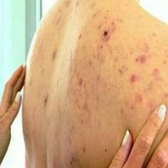 """Treating back acne: back acne remedies & cure for back acne 7 Home Remedies For Back Acne - Natural Treatments & Cure For Back Acne """"Aloe vera has bactericidal . Cystic Acne Treatment, Back Acne Treatment, Natural Acne Treatment, Skin Treatments, Natural Skin Care, Natural Baby, Back Acne Remedies, Overnight Acne Remedies, Natural Acne Remedies"""
