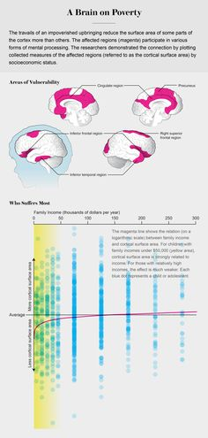 Data visualizations highlight the surprising connections between income and brain structure