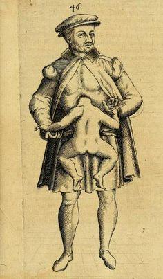 A gentleman with a parasitic twin from 'Monstrorum historia memorabilis' by Johannes Schenk von Grafenberg, 1609.