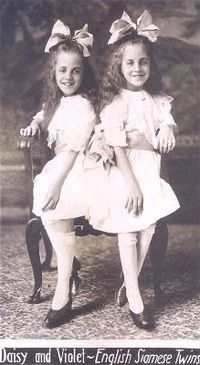 Daisy and Violet Hilton as children