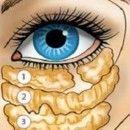 Il gonfiore e le borse sotto gli occhi svaniranno in 12 giorni!