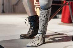 3D Printed Prosthetics - Forbes