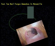 Fast toe nail fungus remedies in monaville - Nail Fungus Remedy. You have nothing to lose! Visit Site Now