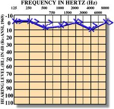 """How to Read an Audiogram from """"The Next Chapter in my Speech World"""". Pinned by SOS Inc. Resources. Follow all our boards at http://pinterest.com/sostherapy for therapy resources."""