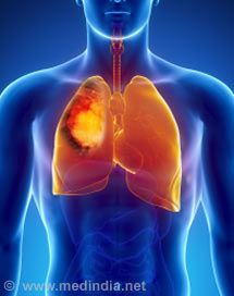 Quiz on Lung Cancer (Advanced)