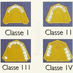 Relembrando as classificações de Kennedy. #OdontoAjuda #MundoDaOdontologia #Odontologia #Prótese #Dentista #OdontoPorAmor #OdontoLove
