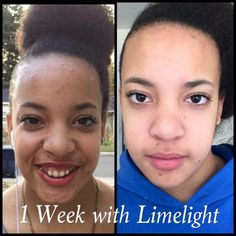 26 Best Limelight By Alcone Skin Care Results Images Professional