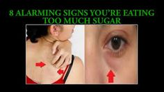 Alarming Signs You're Eating Too Much Sugar