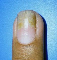 Cómo tratar la psoriasis de las uñas del dedo   eHow en Español
