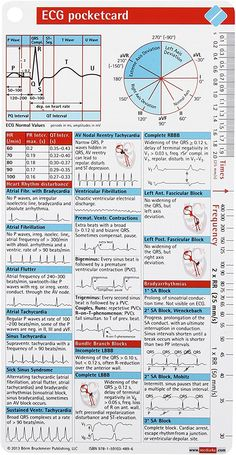 The ECG pocketcard is a quick reference for identifying common ECGfindings. It is the perfect complement to our ECG pocketcard, ECG Ruler pocketcard and ECG. Bola Medicinal, Cardiovascular Nursing, Paramedic Student, Ekg Interpretation, Prescription, Critical Care Nursing, Cardiac Nursing, Nursing School Notes, Emergency Medicine