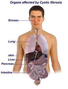 An as cystic adult fibrosis