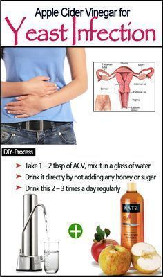 Apple Cider Vinegar Remedies Apple Cider Vinegar for Yeast Infection Or take lots of vitamin C Suffering from this terrible condition is certainly got to be unpleasant. Have you ever wish to end your nightmare? Yeast Infection Home Remedy, Candida Yeast Infection, Yeast Infection Treatment, Apple Cider Vinegar Remedies, Apple Cider Vinegar Benefits, Health Remedies, Home Remedies, Natural Remedies, Hangover