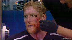 Matt Greene Suffers Bloody Cut By Left Eye During Kings-Rangers #StanleyCup Final Game on June 4th, 2014 #LAKings