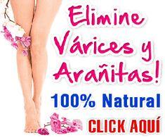 varices nunca mas - masajes para eliminar las várices Healthy Habits, Healthy Skin, Varicose Veins, Natural Medicine, Better Life, Home Remedies, Beauty Hacks, Health Fitness, Skin Care