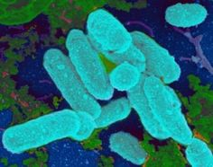 Link between antibiotics, bacterial biofilms and chronic infections foundhea