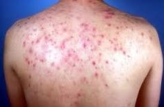 Welcome to osa's blog: ACNE- SYMPTOMS, CAUSES, DIETARY GUIDELINES AND HOM...