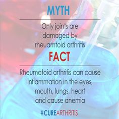 #ArthritisMyth: Only joints are damaged by rheumatoid arthritis. Get the facts @ CureArthritis.org/facts #CureArthritis