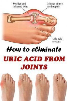 How to eliminate uric acid from joints with detoxification treatment based on cucumber, ginger and celery that helps eliminating toxins.