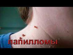 Как удалить папилломы на шее  Применение виоргонов