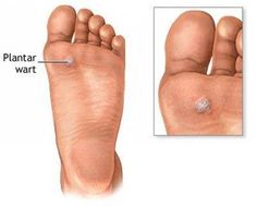 Cost-effective podiatry laser for foot warts ablation, laser plantar wart removal, podiatric laser treatment of achilles tendonitis, ankle sprains, mosaic warts and etc. Home Remedies For Warts, Skin Tags Home Remedies, Warts Remedy, Plantar Wart Removal, Plantar Wart Treatment, Foot Warts, Warts On Face, How To Cure Warts, Planters Wart