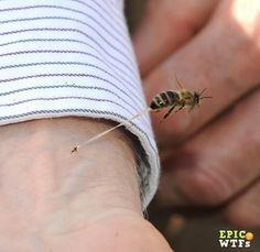 Close up bee sting