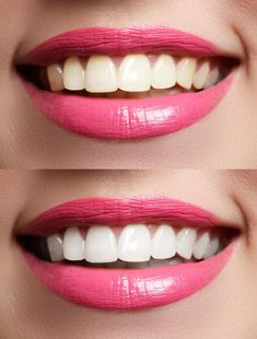 Teeth whitening can be the most simple and affordable way of getting a new smile. Having teeth look whiter and brighter can give you more confidence. Cosmetic Dentistry Procedures, Implant Dentistry, Teeth Implants, Dental Implants, Dental Hygienist, Snap On Smile, Restorative Dentistry, Dental Cosmetics, Dental Crowns