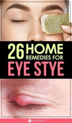 26 Effective Home Remedies For Eye Stye Sty In Eye Remedies, Swollen Eye Remedies, Eye Stye Remedies, Natural Health Remedies, Herbal Remedies, Home Remedies, Eye Irritation Remedies, Sleep Remedies, Holistic Remedies