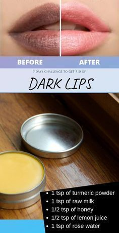 I personally tried this, How To Transform Dark Lips Into Rosy Pink Lips at home – Care – Skin care , beauty ideas and skin care tips Beauty Tips For Glowing Skin, Beauty Tips For Face, Health And Beauty Tips, Beauty Skin, Beauty Advice, Face Beauty, Face Tips, Beauty Ideas, Beauty Guide