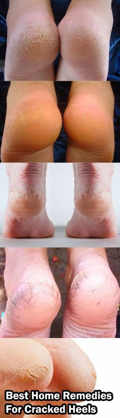 Best Home Remedies For Cracked Heels - Best Home Remedies