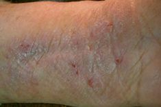 "One category of skin diseases is the ""lichen"" group (thick skin disease): dry or hardened clusters of skin bumps or plaques in brown, purple, or gray hues. Herbal Treatment, Home Treatment, Body Treatments, Varicose Vein Removal, Varicose Veins, Lichen Sclerosus Treatment, Skin Bumps"