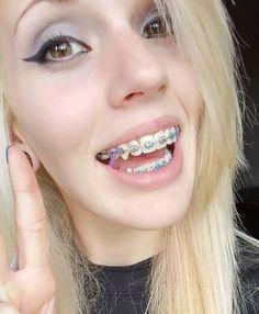 #braces #braceface #metalbraces #girlswithbraces #elastics