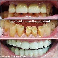 New Smile, new life 🙂 Have a Bright smile! Dental Bridge,Crowns Diamant Dent New Smile, new life :] Have a Bright smile! Dental Bridge Cost, Teeth Care, New Life, Fractions, Benefit, Smile Dental, Smile Teeth, Tooth Bridge, Crowns