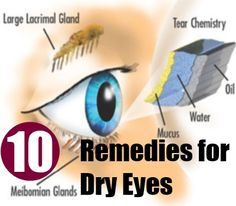 10 Home Remedies for Dry Eyes | http://www.searchhomeremedy.com/home-remedies-for-dry-eyes/