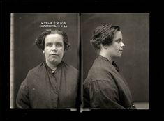 1920-Petty thief Ruby Furlong was involved in an altercation with a drunk musician at Newtown. She pulled out a razor and slashed his face, leaving an ugly scar. Furlong was a feared criminal who had a string of convictions in the early 1920s. Ruby, aged 34, was serving time for malicious wounding when this photograph was taken.