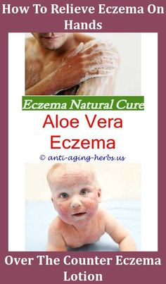 how to get rid of dyshidrotic eczema on hands