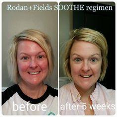 Redness gone with Rodan + Fields Soothe Regimen