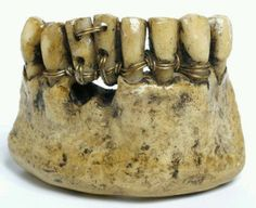 Etruscan teeth attached with gold wire, 4th century BC http://museum-of-artifacts.blogspot.com/2015/10/ancient-dentistry-gold-and-pain.html