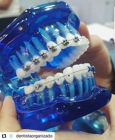Dental Hygiene School, Dental Assistant Jobs, Teeth Drawing, Smile Drawing, Braces Smile, Tooth Extraction Healing, Implant Dentist, Local Dentist, Tooth Box