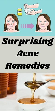 We're used to associating teenagers with acne but anyone can get them really. Worse yet, they always seem to come at an inconvenient time in your life. #Surprising #Acne #Remedies Pixie Hairstyles, Trendy Hairstyles, Oscar Fish, Acne And Pimples, Inside Plants, Cartwheel, Perfume, Helium Balloons, Crocodiles