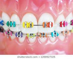 Imagens, fotos stock e imagens vetoriais de Orthodontic Do you understand there ar U. Braces Tips, Kids Braces, Dental Braces, Teeth Braces, Rainbow Braces, Dental Care Center, Cute Braces Colors, Getting Braces, Invisible Braces