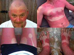 18 of the Most Horrible Sunburn Fails that'll Leave You Literally Cringing  worst tanlines ever!