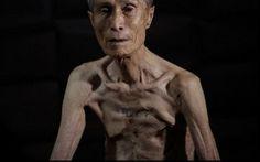 Cicatrizes de Nagasaki: japonês que sobreviveu à bomba atômica relata sofrimento…