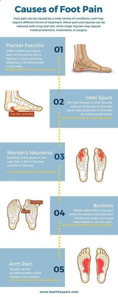 Plantar Fasciitis One Big Pain In The Ot Calf Exercises