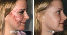 Pour se débarrasser de l'acné on n'a pas besoin d'acheter des produits chers, on peut éliminer les boutons d'acné d'une façon naturelle avec cette recette d'une crème maison anti-acné.