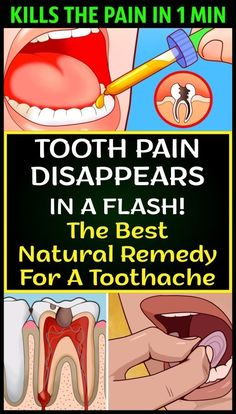 Herbal Remedies Cure Your Toothache In a Minute With These 6 Home Remedies - Healthy Tips - Toothaches are both painful and extremely stressful and if you don't have the right medicine lying around, you're in for a world of suffering. Cold Home Remedies, Natural Health Remedies, Herbal Remedies, Holistic Remedies, Remedies For Tooth Ache, Receding Gums, Best Oral, Oral Health, Health Care