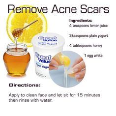 remove-acne-scars - DIY for Life